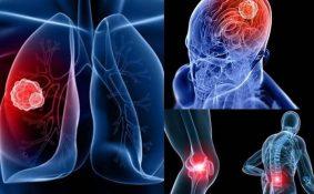 Ung thư phổi đã di căn sống được bao lâu?