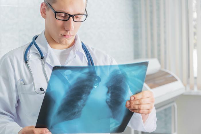 Ung thư phổi đã di căn sống được bao lâu 1
