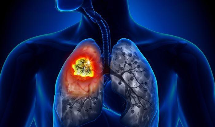 ung thư phổi giai đoạn 4