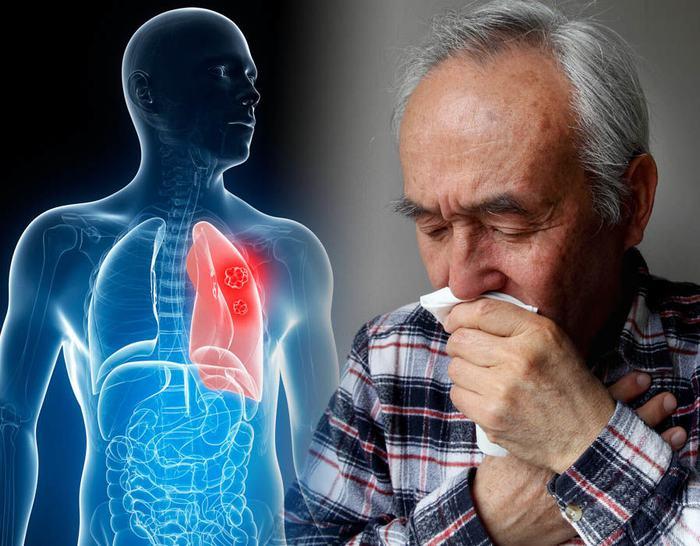 Ở giai đoạn đầu, các triệu chứng ung thư phổi chưa rõ ràng và dễ nhầm lẫn