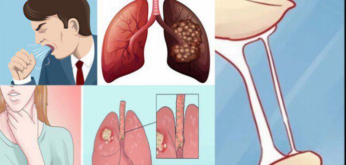 Ung thư phổi không phải tế bào nhỏ là gì 1