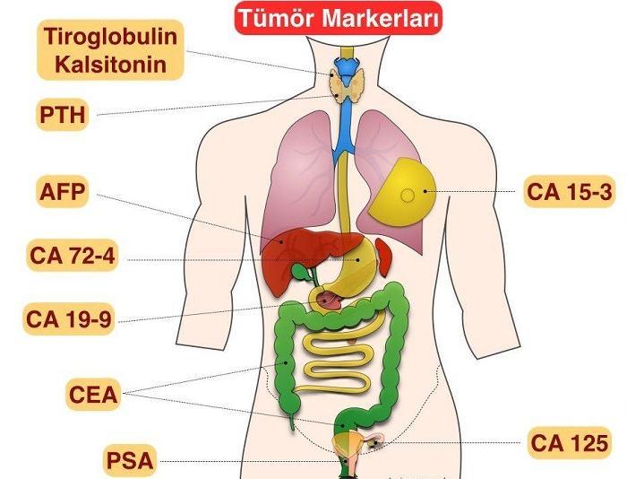 Phát hiện được 8 loại ung thư nhờ xét nghiệm máu 1