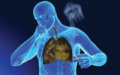 Bổ sung vitamin B để đẩy lùi ung thư phổi