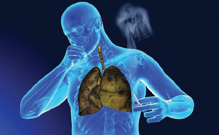 Bổ sung vitamin B để đẩy lùi ung thư phổi 1