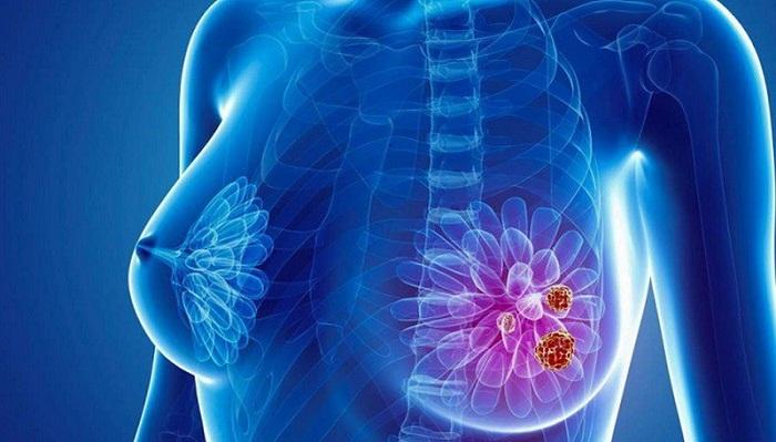 Cho con bú giúp phụ nữ giảm đáng kể nguy cơ ung thư vú