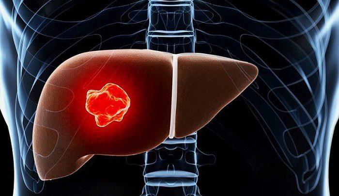 tiên lượng ung thư đường mật