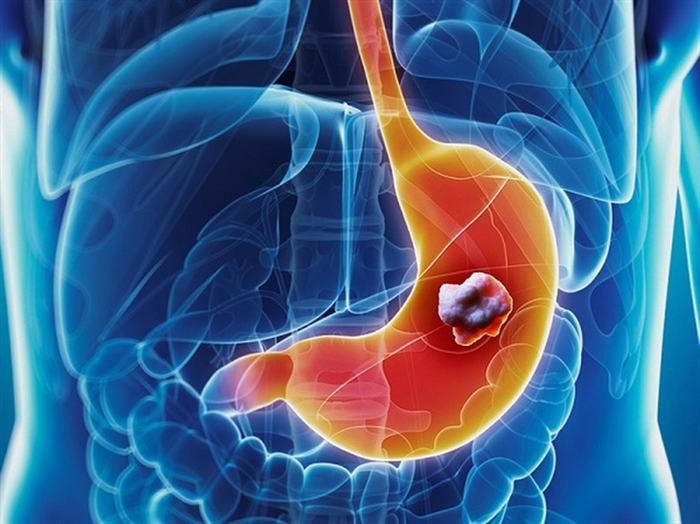 Cách tầm soát 6 loại ung thư thường gặp 1