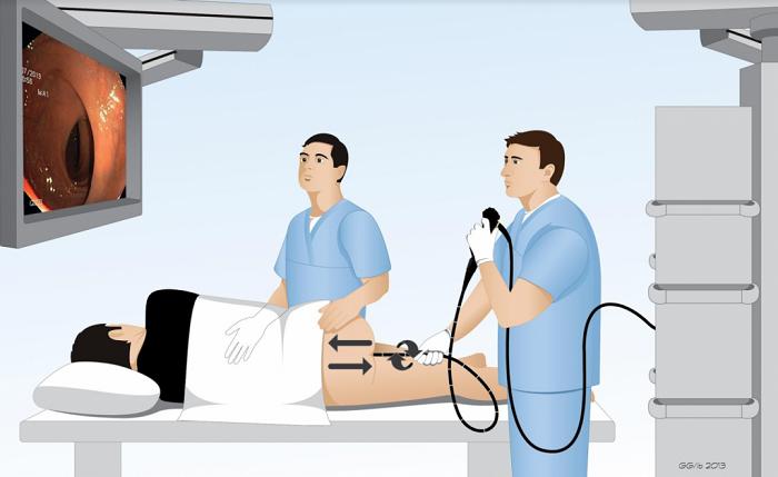 Cách tầm soát 6 loại ung thư thường gặp 2