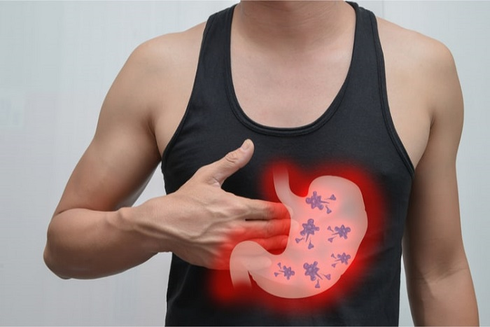Triệu chứng này có thể cảnh báo ung thư dạ dày