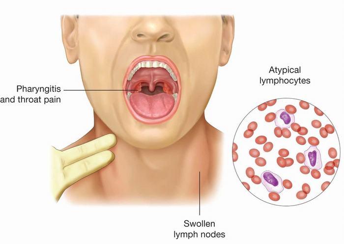 Virus EBV là một trong những thủ phạm làm tăng nguy cơ mắc ung thư vòm họng