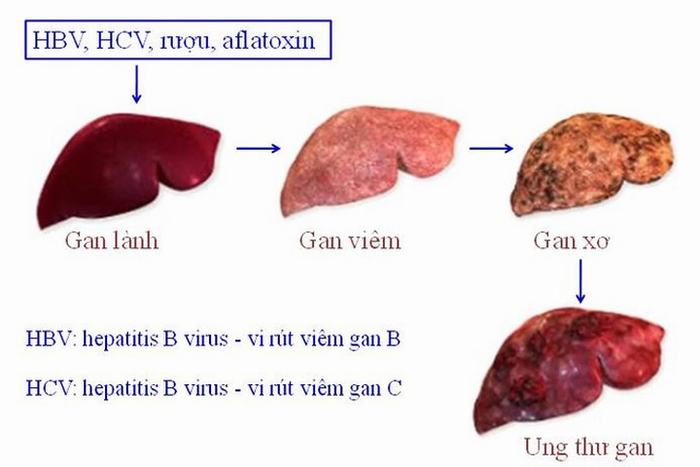 người mắc ung thư gan mật 1