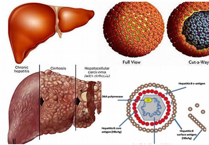 người mắc ung thư gan mật