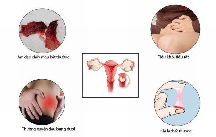 Các khuyến cáo về tầm soát ung thư cổ tử cung 1