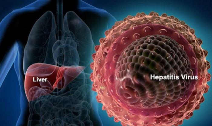 Ung thư gan có thể xuất phát từ xơ gan, viêm gan B, C mạn tính