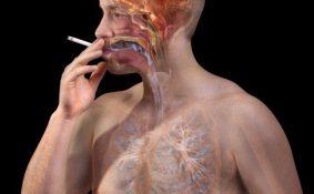 Giải đáp thắc mắc về ung thư phổi