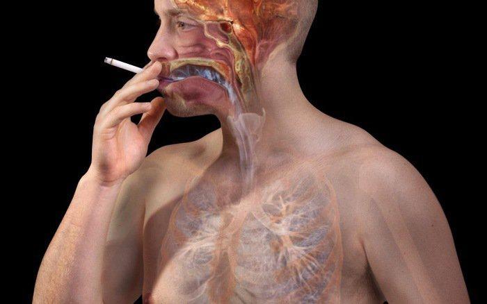 Thuốc lá có liên quan tới hơn 90% trường hợp mắc ung thư phổi