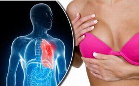 Tại sao phải tầm soát ung thư toàn thân?
