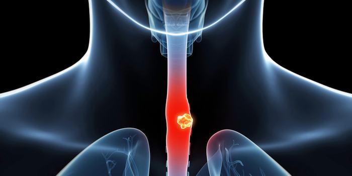 Hiểu lầm tai hại về ung thư thực quản