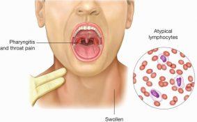 Bật mí các yếu tố gây ung thư vòm họng