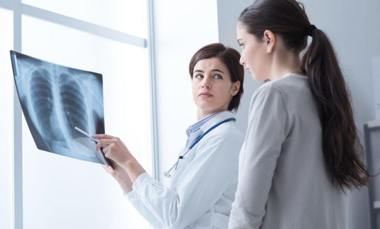 6 dấu hiệu nhận biết ung thư phổi giai đoạn đầu