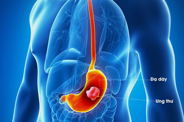 Có 5 triệu chứng này bạn nên tầm soát ung thư dạ dày ngay