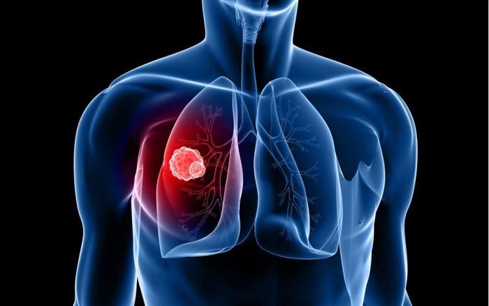 phương pháp điều trị ung thư phổi bằng truyền hóa chất