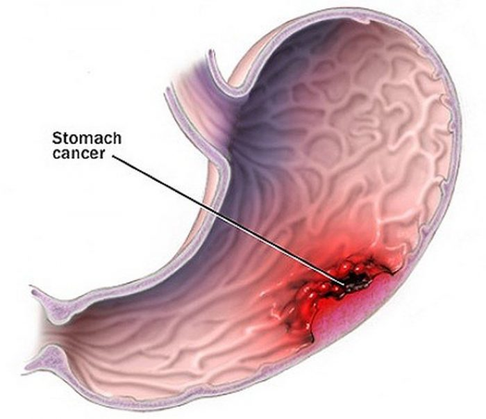 phương pháp mổ nội soi ung thư dạ dày