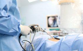 Những điều cần biết về phương pháp mổ nội soi ung thư dạ dày