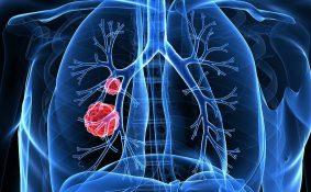 Ung thư phổi giai đoạn 2 sống được bao lâu