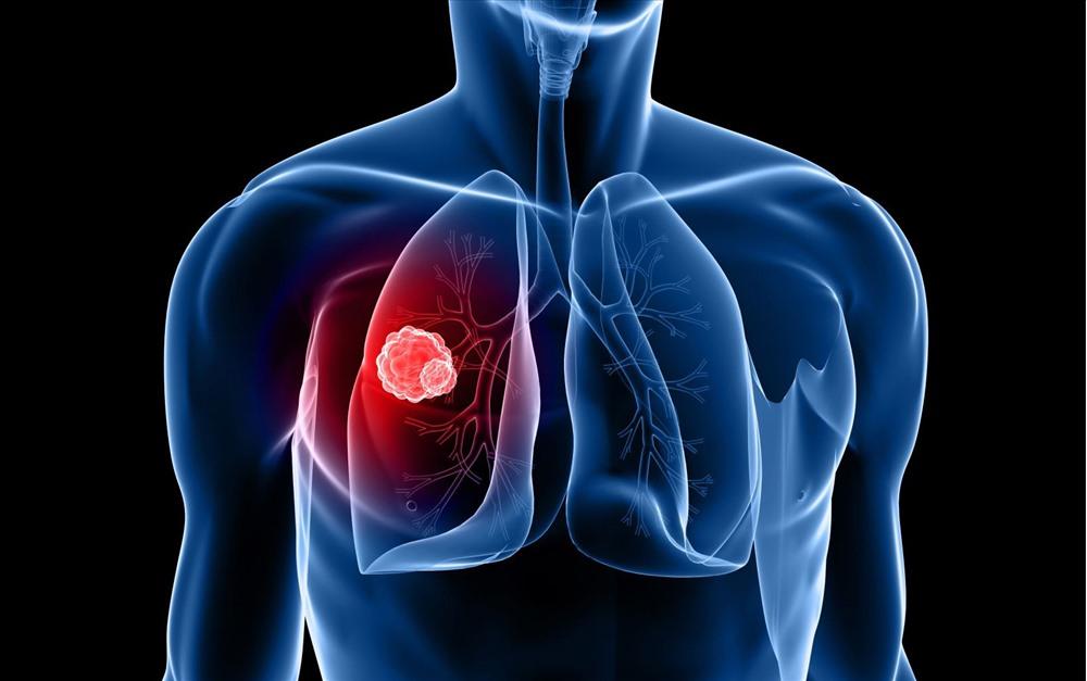 triệu chứng của ung thư phổi giai đoạn 3