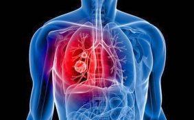 Ung thư phổi giai đoạn 4 sống được bao lâu cách điều trị