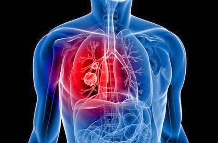 Ung thư phổi giai đoạn 4 sống được bao lâu
