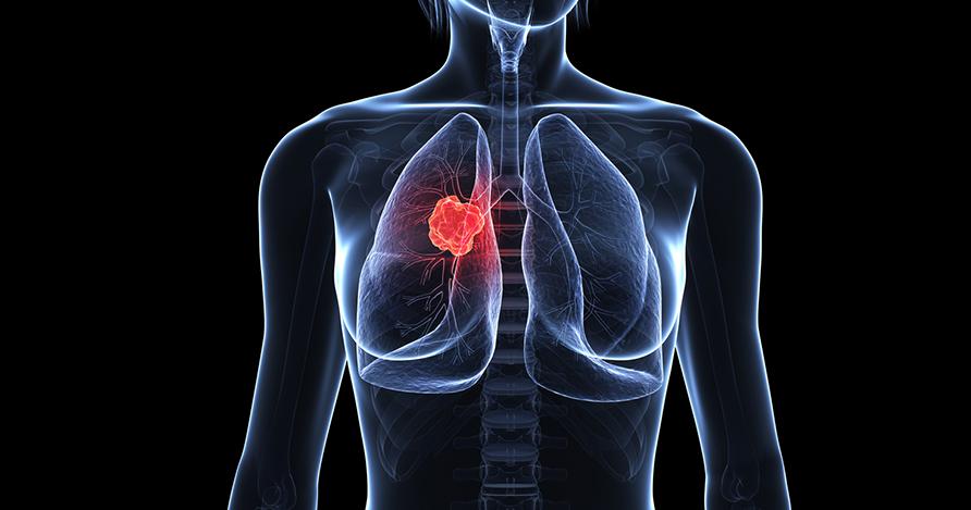 Ung thư phổi tế bào nhỏ là gì, cách điều trị hiệu quả
