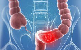 Khi nào cần nội soi tầm soát ung thư đại trực tràng