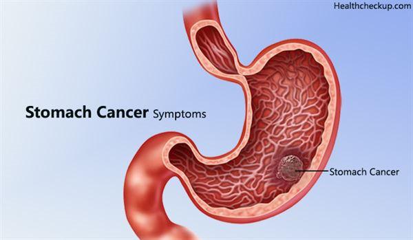 mổ ung thư dạ dày bằng phương pháp nội soi