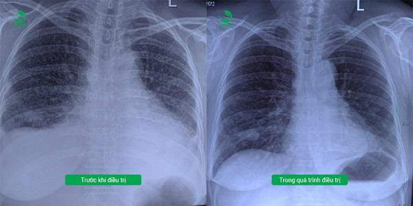 """Dù """"phổi trắng như sao trên trời"""" nhưng vẫn có thể được kiểm soát tốt"""
