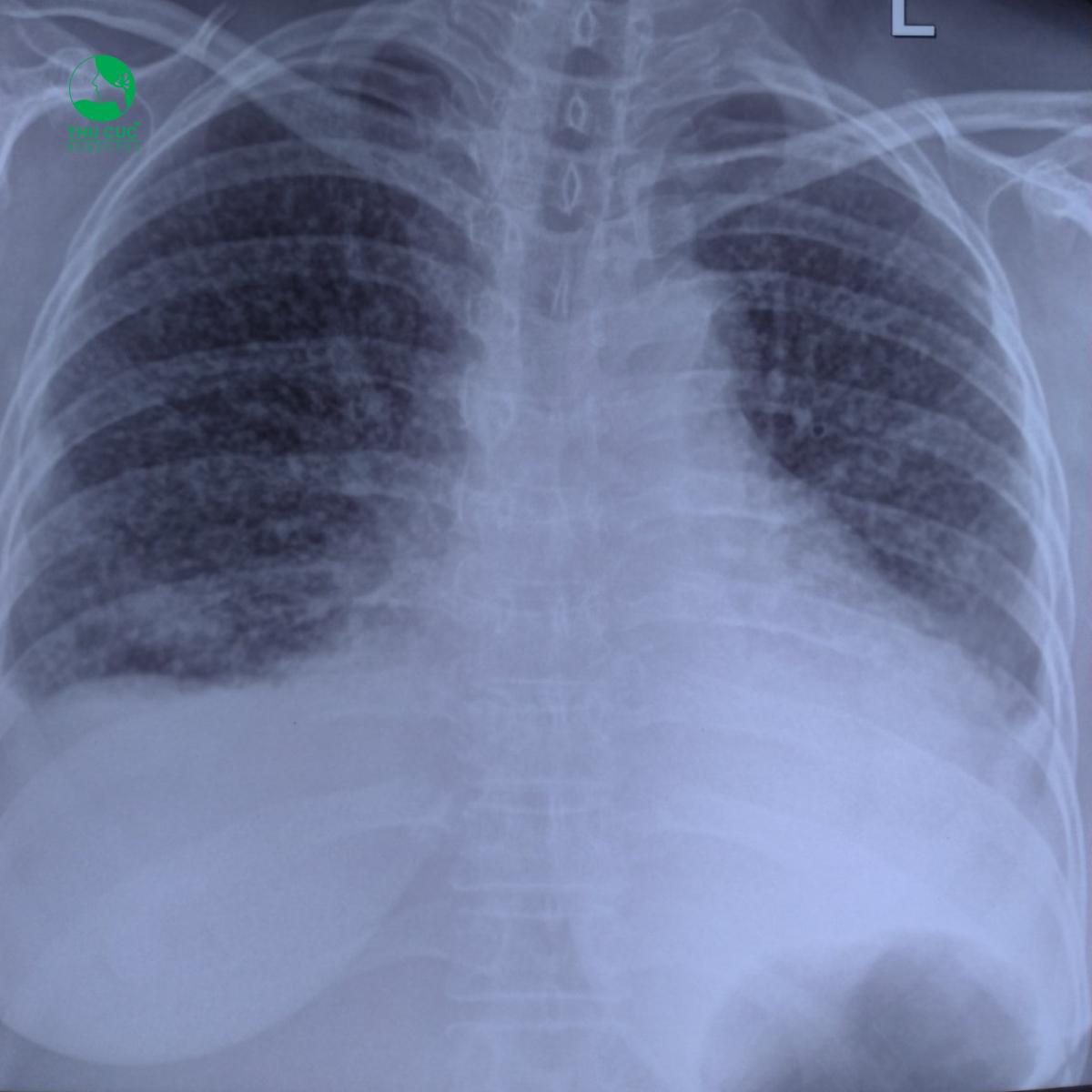 Sự phục hồi kỳ diệu của bệnh nhân ung thư phổi giai đoạn cuối