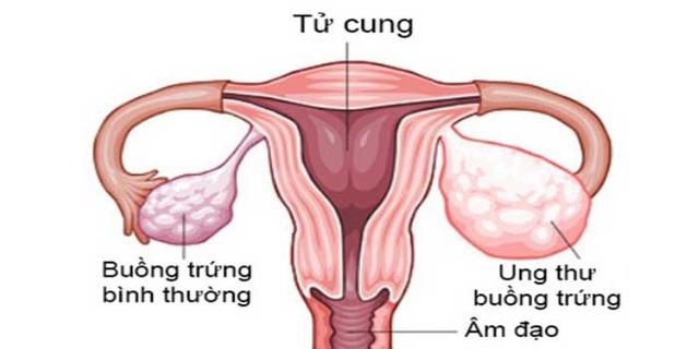 Ung thư buồng trứng là loại ung thư phổ biến thứ 5 ở phụ nữ và phổ biến thứ hai đối với ung thư đường sinh dục ở phụ nữ.