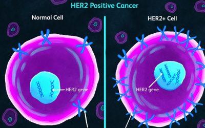 Cá nhân hóa việc điều trị cho bệnh nhân ung thư
