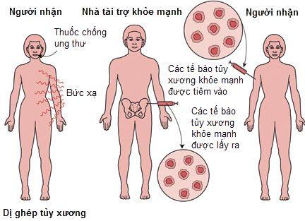 cay-ghep-tuy-xuong